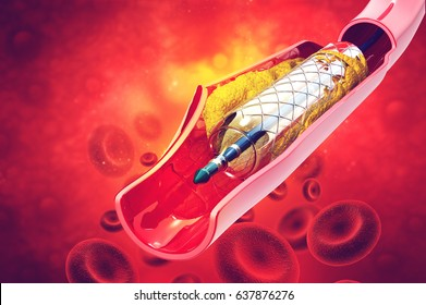 Stent angioplasty. 3d illustration