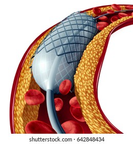 Stent and angioplasty concept isolated on a white background as a heart disease treatment symbol with an implant in an artery that has cholesterol plaque blockage as a 3D illustration.