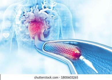 Stent angioplasty on scientific background. 3d illustration