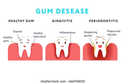 Step of gum disease. Healthy tooth and gingivitis.. Cute cartoon design, illustration isolated on blue background. Dental care concept.