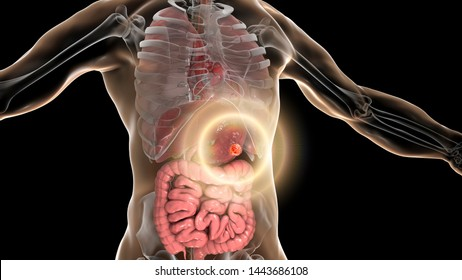 Stomach cancer, gastric carcinoma, 3D illustration. Concept of gastric cancer treatment and prevention