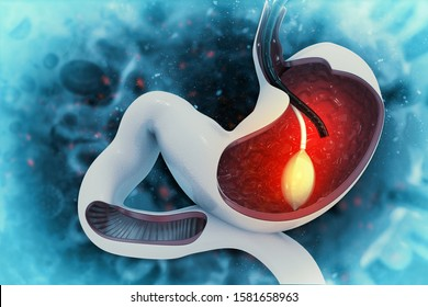 stomach Endoscopy.Gastric Balloon Inside a Stomach.3d illustration