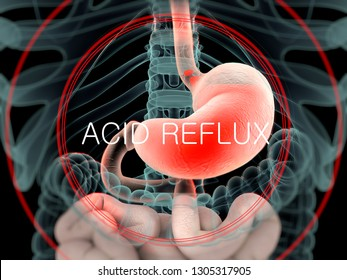 """Stomach and intestines showing indigestion or acid relfux. X-ray image of human anatomy. Title """"Acid Reflux"""". 3D illustration."""