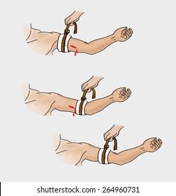 Stop the bleeding. Tourniquet. Instructions illustration of a tourniquet to stop the bleeding.