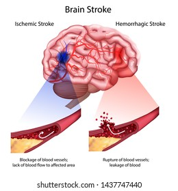 Stroke types poster, banner. medical illustration. white background, anatomy image of damaged human brain, blocked and ruptured blood vessels. stroke, 3D realistic image