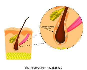 The structure of the hair. Sebaceous gland. Introduction of demodex mite. Demodecosis. Infographics. illustration on isolated background.