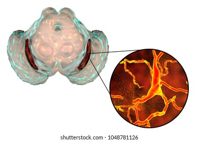 Substantia nigra, a basal banglia of the midbrain, in Parkinson's disease, 3D illustration showing decrease of its volume and degeneration of dopaminergic neurons in the pars compacta of the