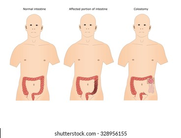 surgery of intestine: colostomy, with colostomy pouch