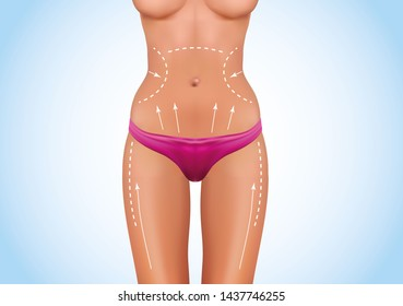 Surgical lines on beautiful woman's body. Closeup of female slim fit body with white marks on skin which show places for plastic surgery operation. Girl in perfect sexy body shape in white panties.
