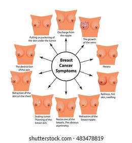 Symptoms of breast cancer. Infographics. illustration on isolated background.