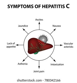 Symptoms of hepatitis C. Liver. World Hepatitis Day. July 28th. Infographics. illustration on isolated background