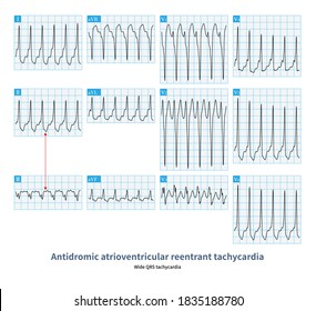 The tachycardia passes down the atrioventricular bypass excite the ventricle, and passes through the His bundle-atrioventricular junction to move back to the atrium, repeating the cycle.