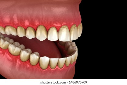 Tartar Teeth Images, Stock Photos & Vectors | Shutterstock