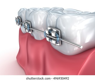 Teeth with braces isolated on white. Medically accurate 3D illustration