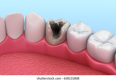 Teeth with caries, treatment. Medically accurate tooth 3D illustration.