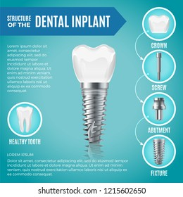Teeth maquette. Structural elements of dental implant. Infographic for medicine poster. dental poster, implant medical tooth illustration