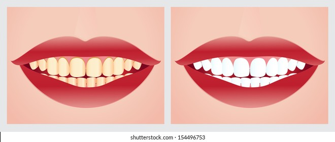 Teeth whitening. Before and after treatment.