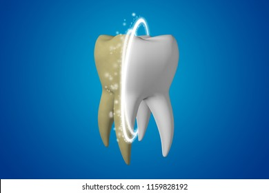 Teeth whitening. Yellow dirty tooth whitening and clears the magic line in a white healthy tooth on a blue background. 3d render of teeth