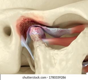 Temporomandibular joints arthritis and dislocated articular disc. Medically accurate 3D illustration.