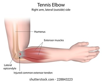 Tennis elbow condition labeled.