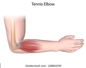 Tennis elbow condition unlabeled.