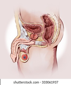 Testicular cancer and prostate: male sexual organs