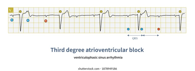 In the third-degree AV block, if the QRS complex is sandwiched in the PP interval, the PP interval may be shorter, and the PP interval without QRS complex may be longer.