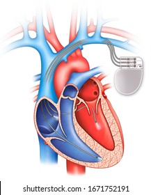 Three-chamber pacemaker, schematic illustration of the human heart with a pacemaker.