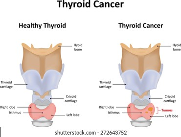 Thyroid Nodules Images Stock Photos Vectors Shutterstock