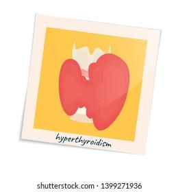 Thyroid gland disorder poster. Hyperthyroidism goiter symbol in a photo frame. Cute unhealthy internal body organ icon in cartoon style. Human endocrine system. Medical illustration.