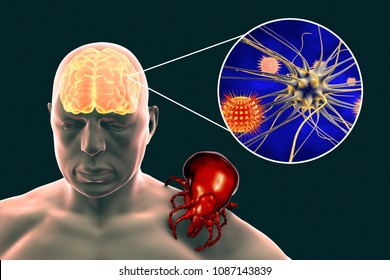 Tick-borne encephalitis concept, 3D illustration showing brain highlighted in human body, tick transmitting arboviruses and close-up view of neurons infected by viruses