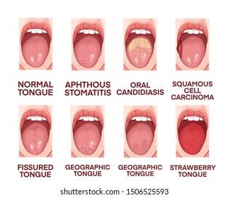 Tongue anatomy and pathology illustration.