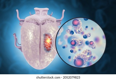 Tongue cancer medical concept or squamous cell carcinoma as malignant tumor disease. 3d illustration