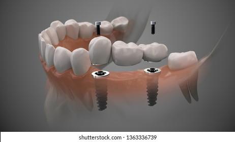 Tooth bridge human implant. Dental prosthetic innovation. 3d illustration.