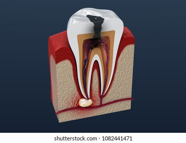 Tooth decay. 3D illustration