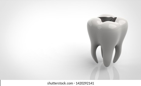 tooth decay right 3d rendering