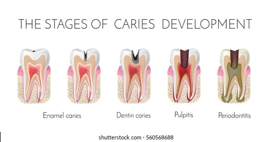Tooth decay. The stages of caries development. Enamel and dentin caries, pulpits and periodontitis medical raster copy