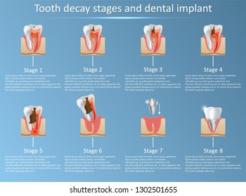 Tooth decay stages and dental implant. illustration. Dental medicine and replacement concept. Training medical anatomical poster.