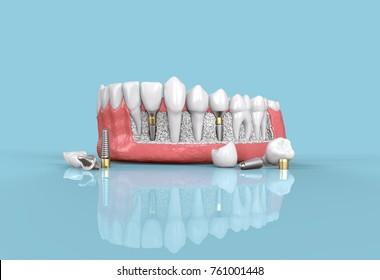 tooth dental implant model 3d illustration