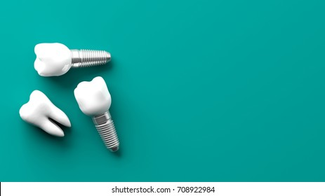 Tooth and dental implants isolated on green background. 3d illustration