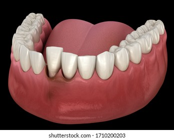 Tooth dislocation after trauma. Medically accurate 3D illustration
