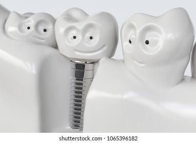 Tooth human cartoon implant - 3D Rendering