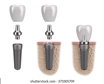 Tooth human implant