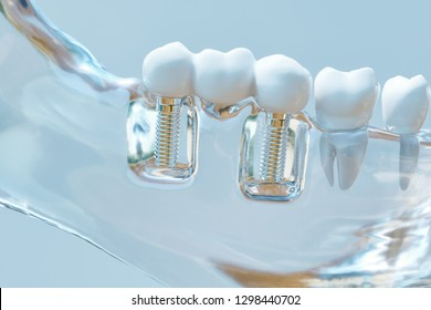 Tooth human implant -- 3D Rendering