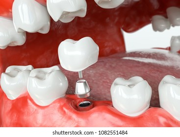 Tooth human implant -before - 3D Rendering