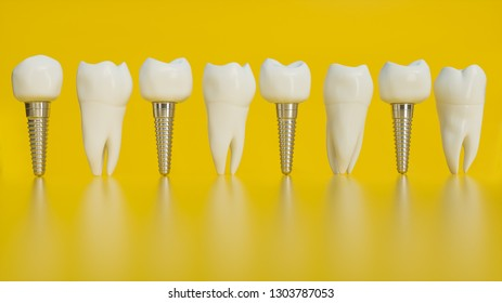 Tooth human implant. Human teeth or dentures on yellow background -- 3d rendering