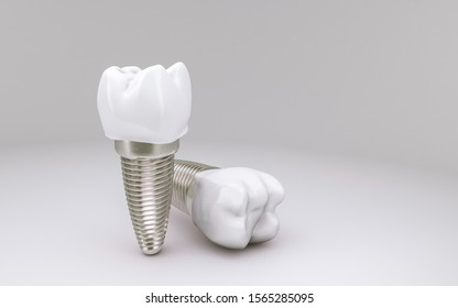 Tooth Implant concept on white background; 3D Illustration