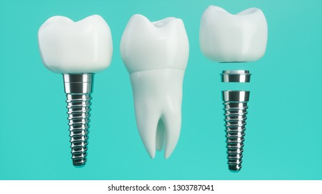 Tooth implant disassembled -- 3D Rendering