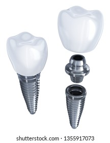 Tooth implant disassembled on isolated white background. 3d illustration