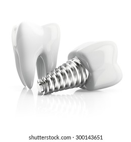 tooth with implant isolated on white